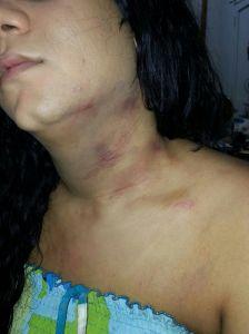 Moratones dejados por la agresión en el cuerpo de Luz Bárbara.